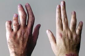 Hints Concerning Arthritis Prevention
